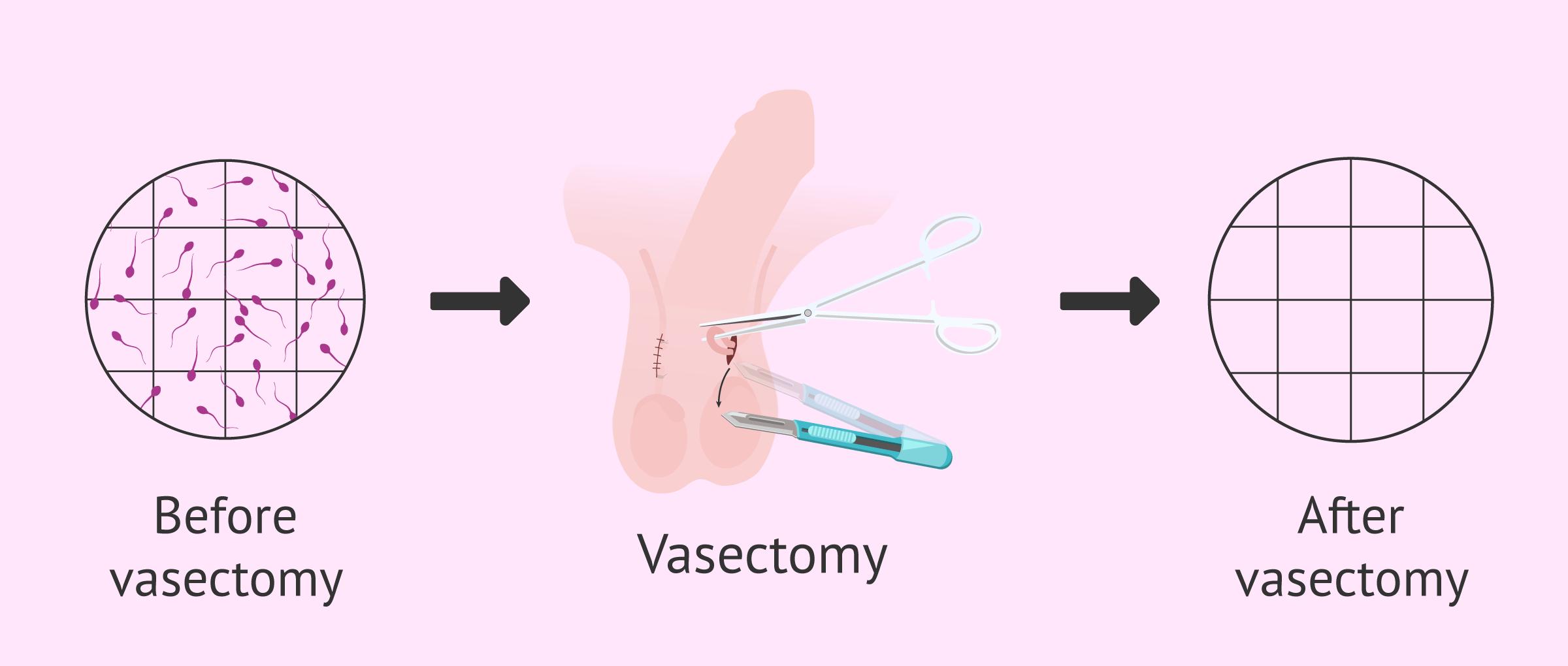 Azoospermia after vasectomy