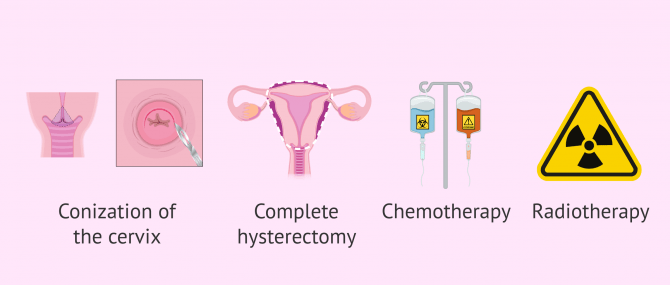 Imagen: Therapeutic options for cervical cancer