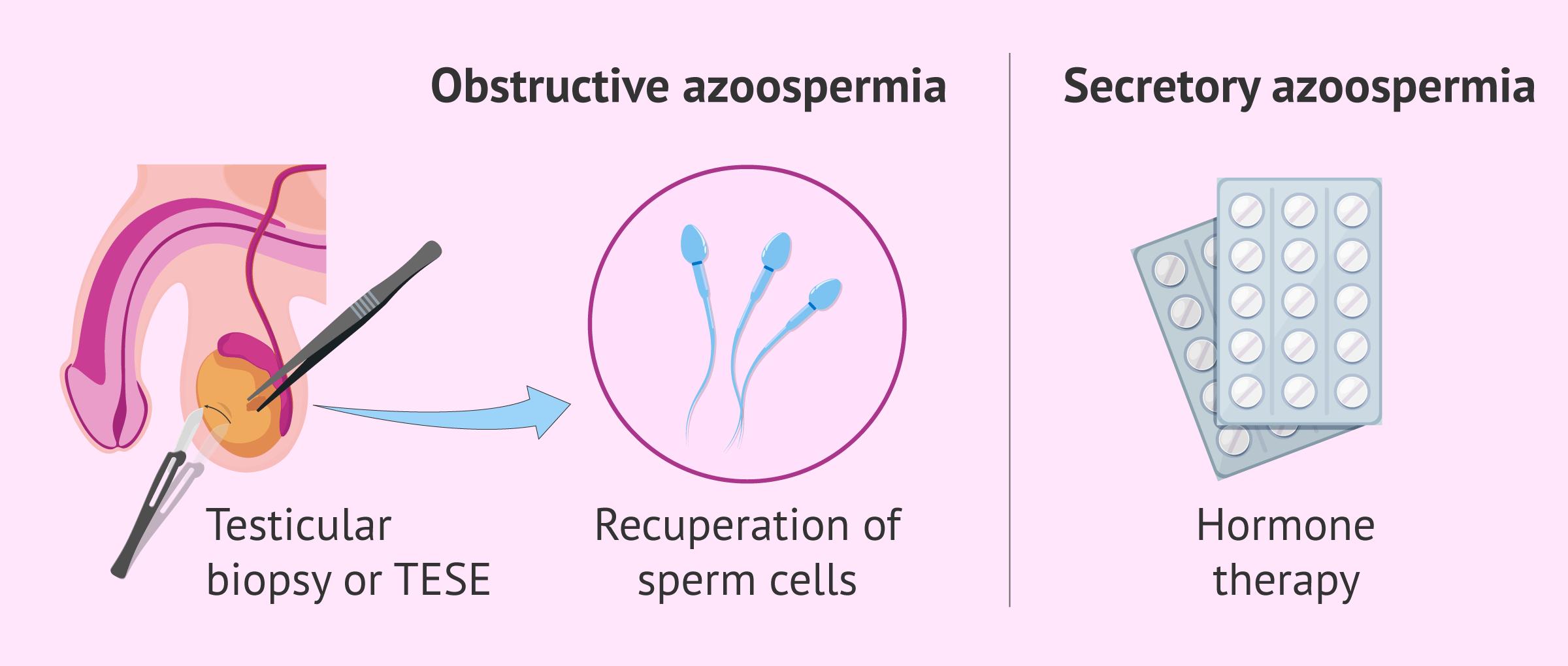 Medical treatment for azoospermia