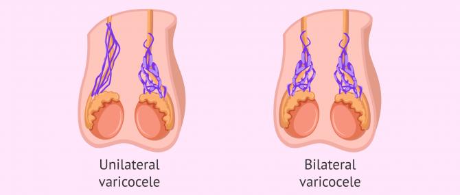 Imagen: Varicocele on one or both sides