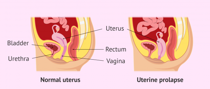 Imagen: Difference between normal uterus and uterine prolapse