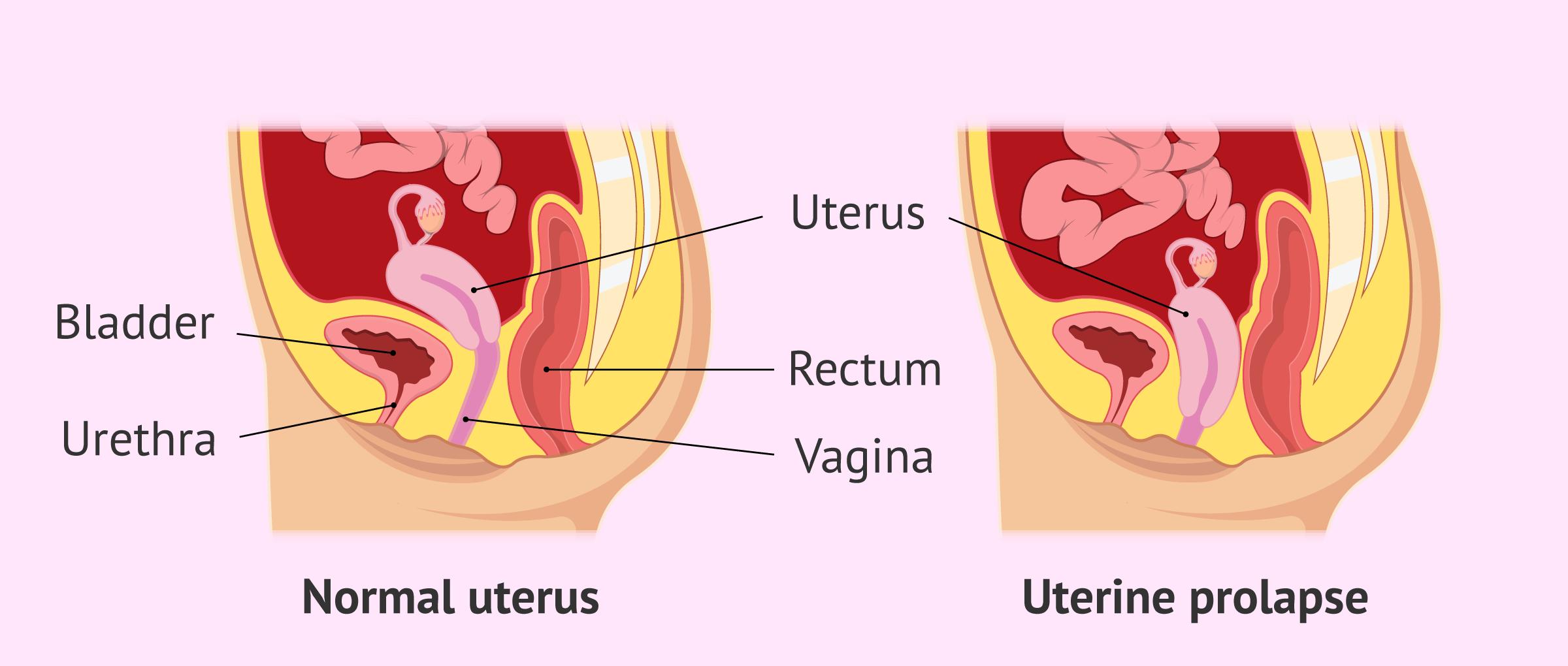 Uterine Prolapse - Symptoms, Stages & Treatment