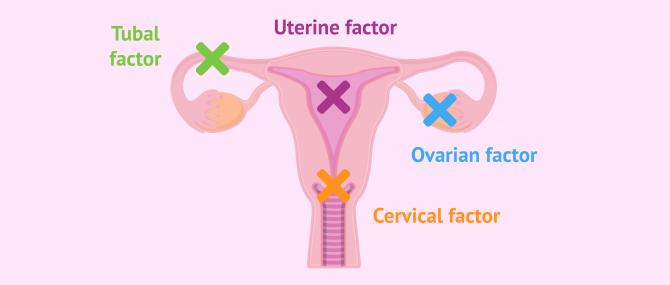 Imagen: Female sterility origin