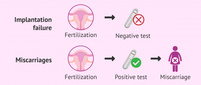 Imagen: Implantation failure infertility and miscarriage