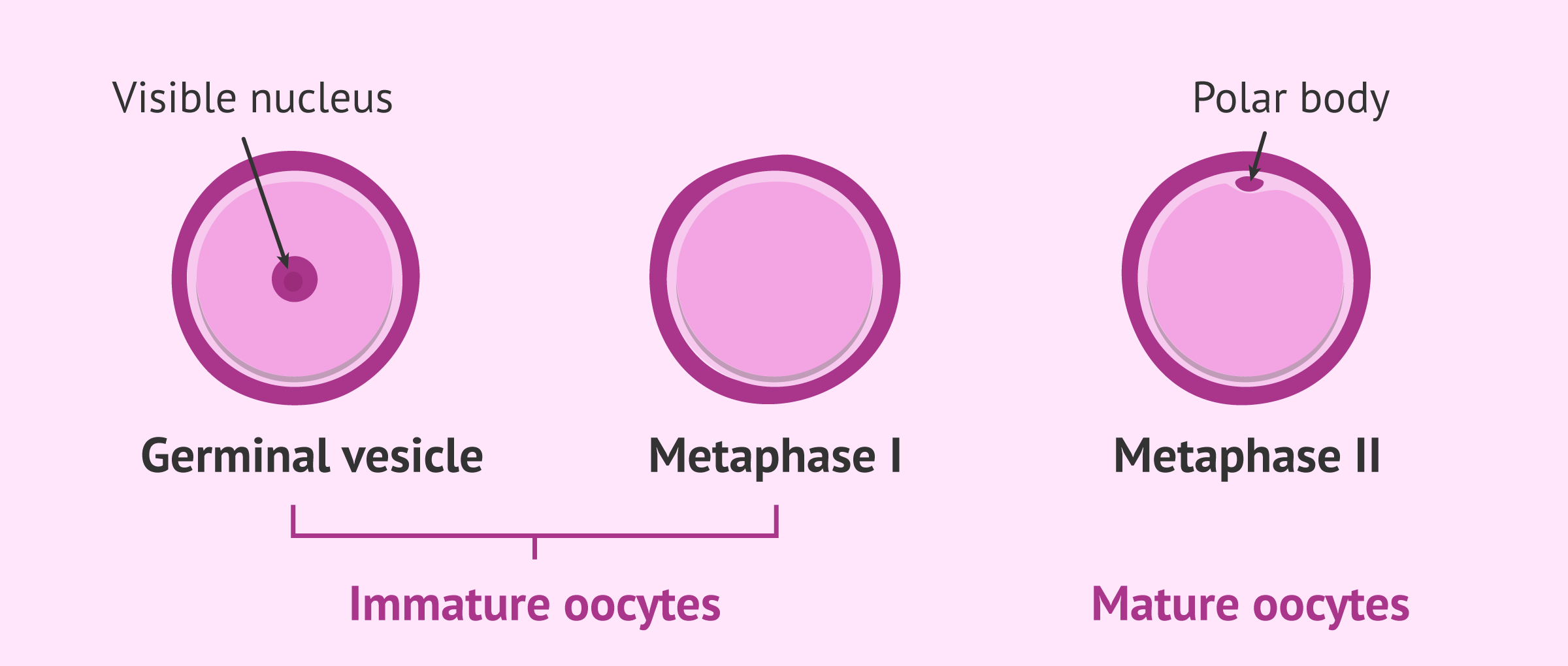 In Vitro Maturation of Oocytes (IVM) in Assisted Reproduction
