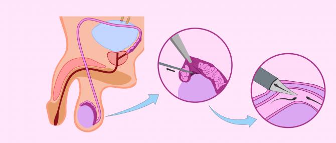 Imagen: Micro-epididymal sperm aspiration