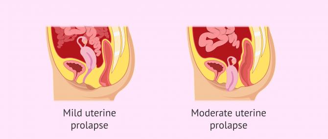 Imagen: Types of uterine prolapse