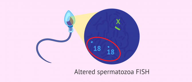 Imagen: FISH of altered spermatozoa