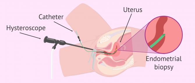 Imagen: How is endometrial scratching done?