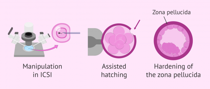 Imagen: What influences the likelihood of twins in IVF?