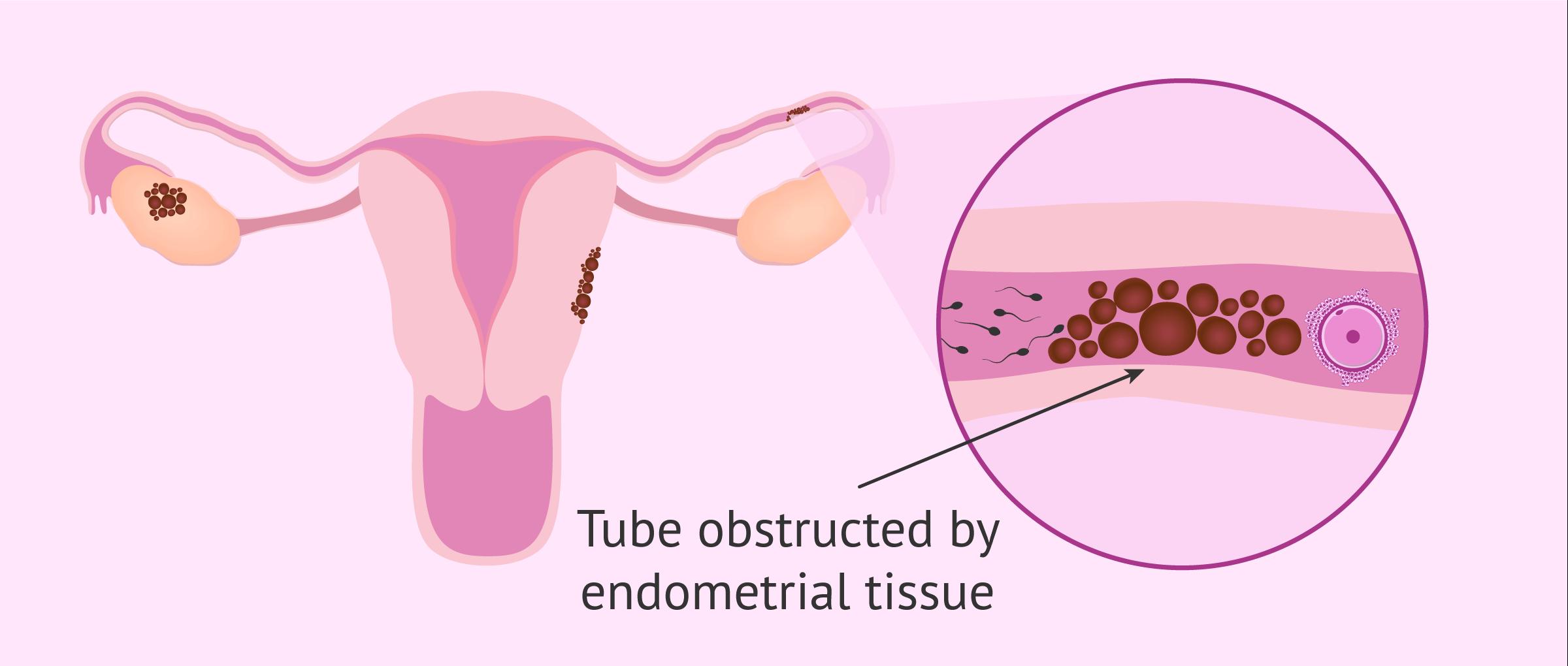 Tubal obstruction due to endometriosis
