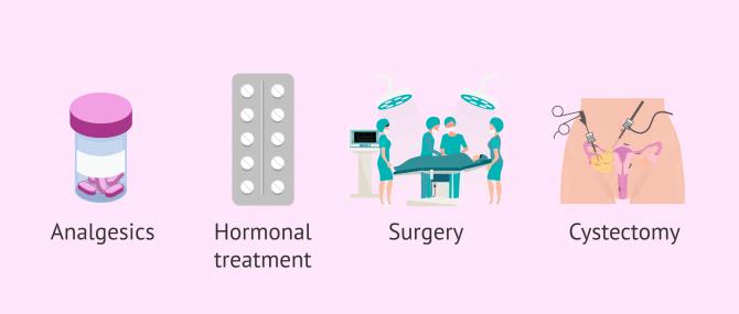 Imagen: Endometriosis treatment and natural pregnancy