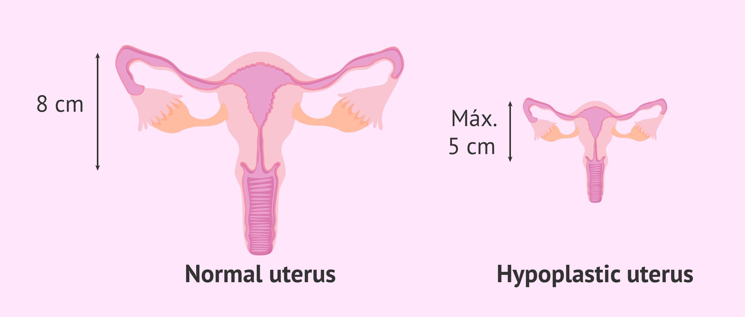 The hypoplastic uterus